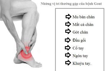 Nguyên nhân và cách phòng tránh bệnh Gout không cần đến bệnh viện