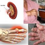 Tác hại của bệnh Gout và những phương thuốc hiệu nghiệm cho căn bệnh này