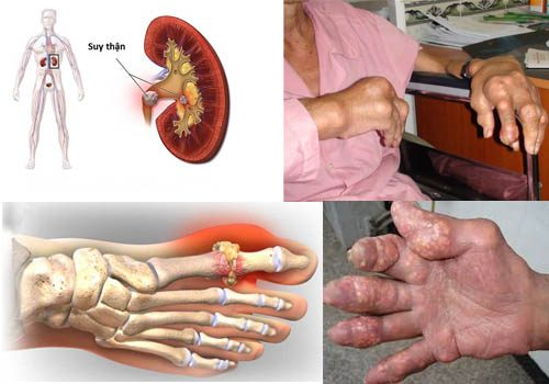 Biến chứng bệnh Gút