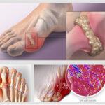 5 thảo dược giá rẻ khắc tinh của bệnh Gout (Gút ) bạn không thể bỏ qua