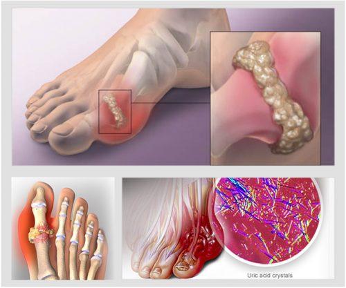 Bệnh Gout căn bệnh của cuộc sống hiện đại