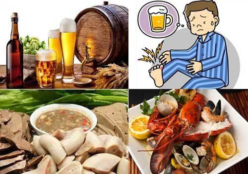 chế độ ăn uống và sinh hoạt là nguyên nhân chính của bệnh Gout (gút)