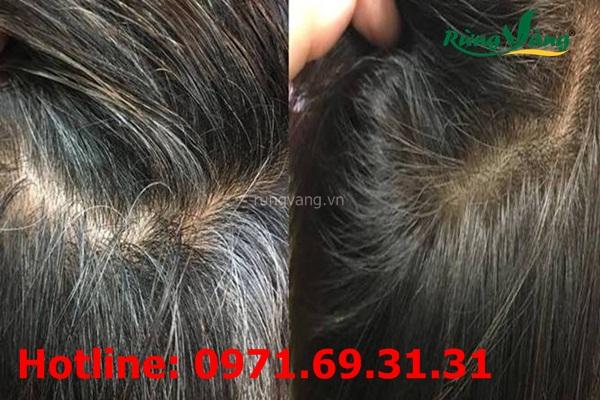 trị bạc râu tóc bằng hà thủ ô